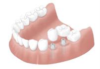 implantThumb